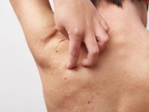 背中のぶつぶつ跡の正体とその原因